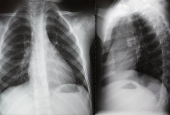 Манту или рентген: что лучше, безопаснее?