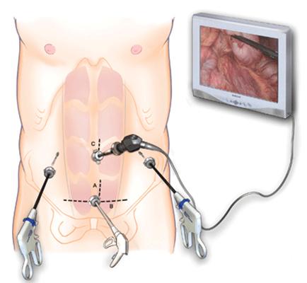 Лапароскопия или полостная операция – что лучше?