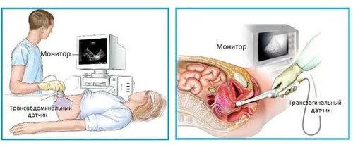 УЗИ на 7-8 и 9 неделе беременности: причины проведения