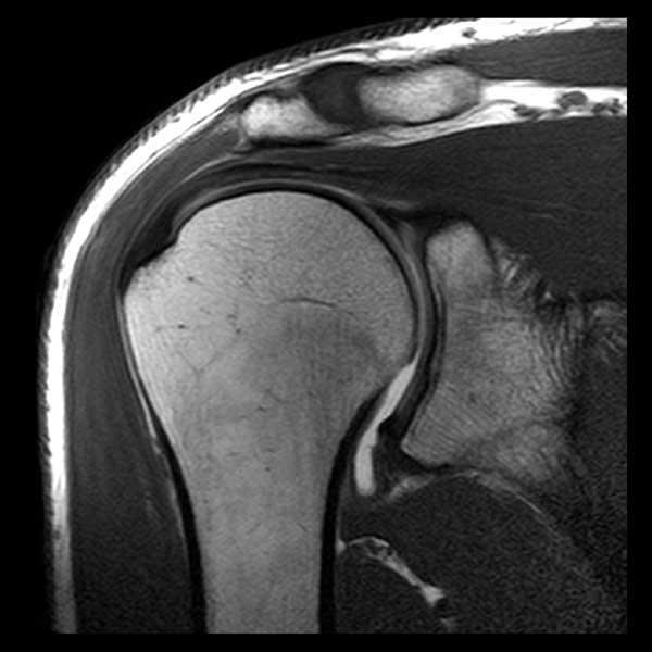МРТ плечевого сустава - что показывает, противопоказания