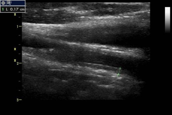 УЗДГ сосудов головы и шеи (допплерография) – что показывает?