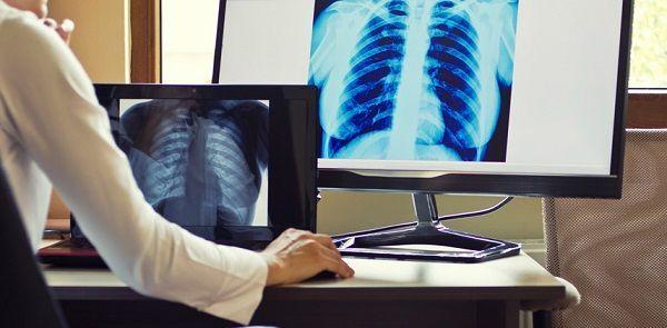 Цифровой рентген: принцип метода, преимущества, недостатки