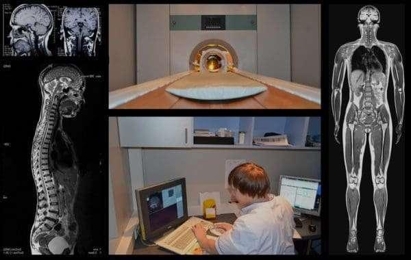 Есть ли необходимость в проведении МРТ после рентгена?