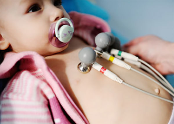 ЭКГ ребенка в 1 год: норма, рекомендации