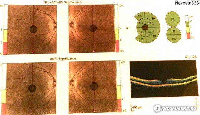 Оптическая когерентная томография глаза - ОКТ