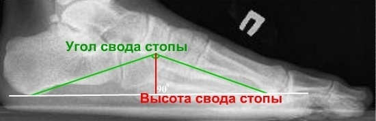 Рентген стопы при плоскостопии: проведение, результаты
