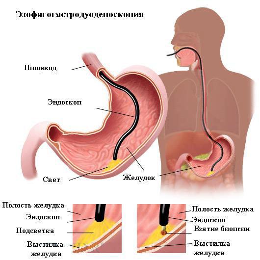 Эндоскопическая диагностика: виды, показания, проведение, результаты