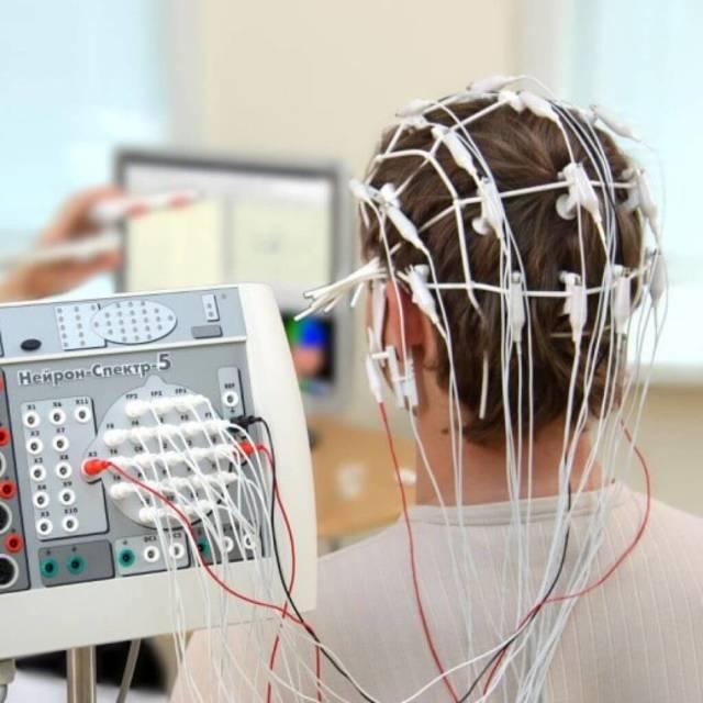 Как делают ЭЭГ головного мозга?