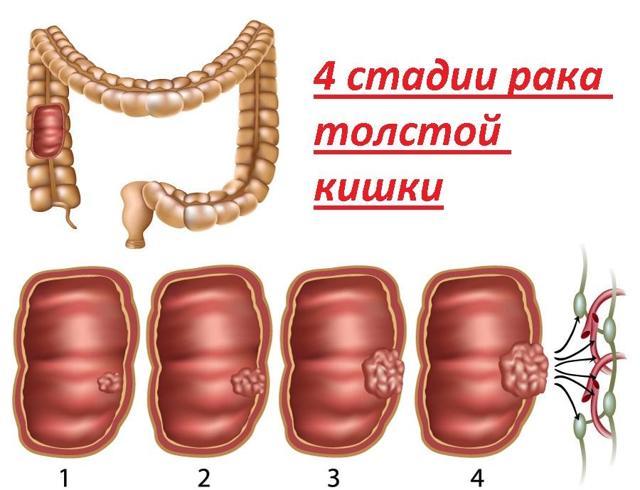 КТ кишечника - что показывает, подготовка, проведение