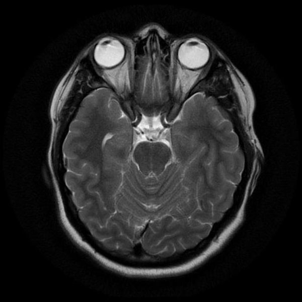 МРТ головного мозга: заключение, расшифровка