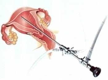 Гистероскопия: последствия, осложнения и их лечение
