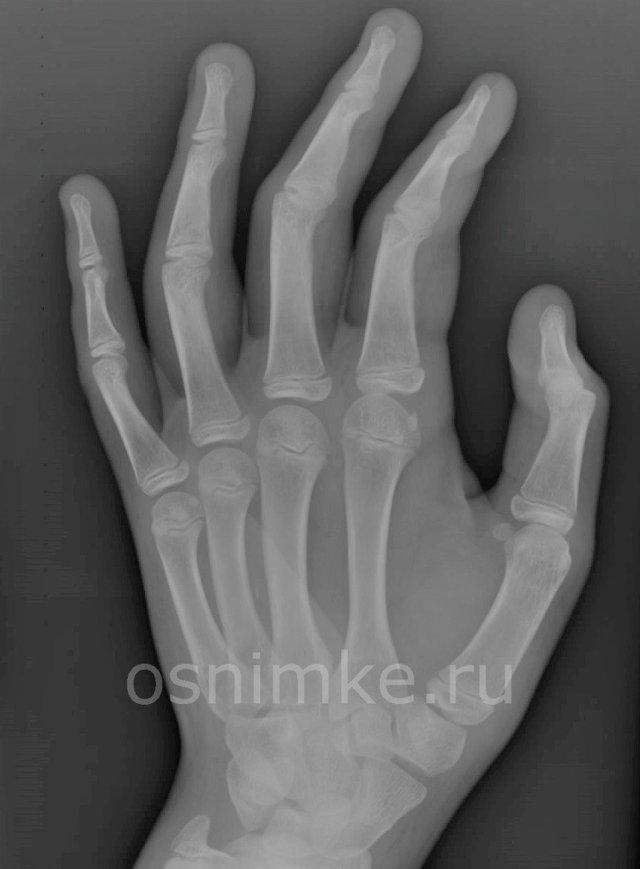 Рентген ребенку: вредно ли и чем может быть опасен впоследствии?