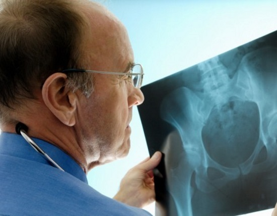 Рентген копчика: как делают, подготовка, противопоказания