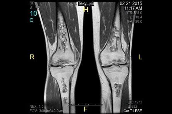 МРТ коленного сустава: что показывает, как делают?