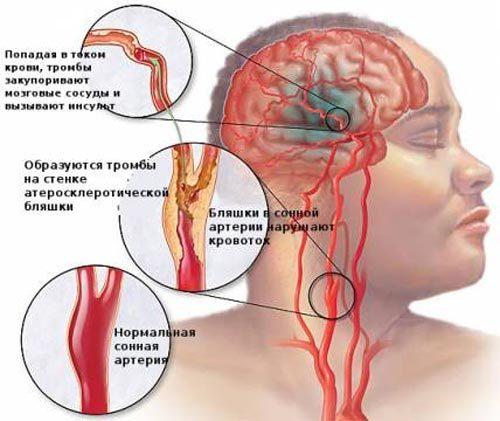 УЗИ головного мозга и его сосудов в деталях