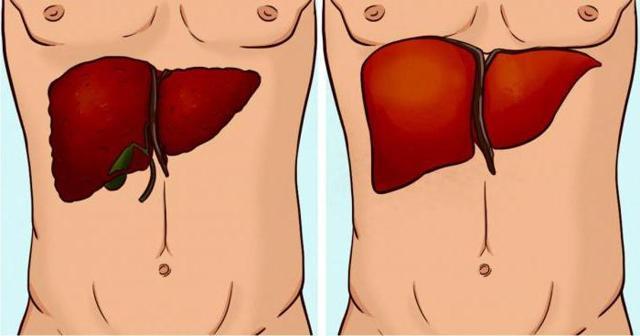 УЗИ органов гепатобилиарной системы: подготовка, проведение и результаты