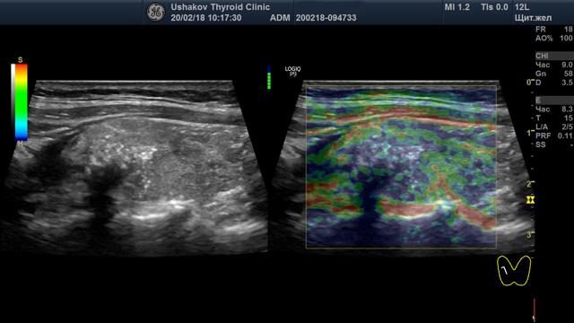 Признаки рака щитовидной железы на узи