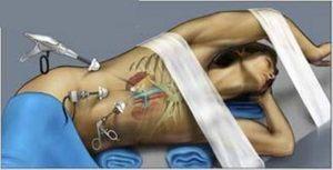Лапароскопия почки: резекция кисты, удаление камней