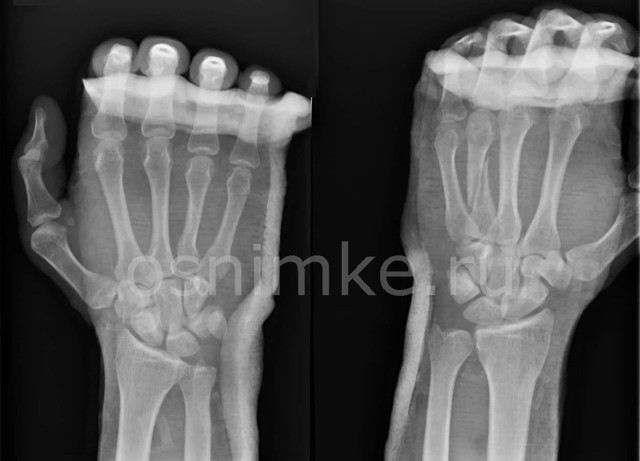 Рентген кисти руки: показания, проведение, описание и результаты