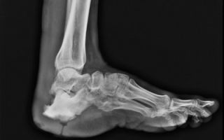 Рентген-признаки остеомиелита на рентгенограмме