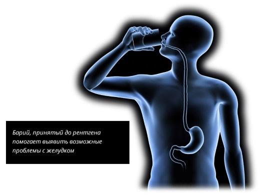 Рентген желудка с барием: что показывает, подготовка, последствия