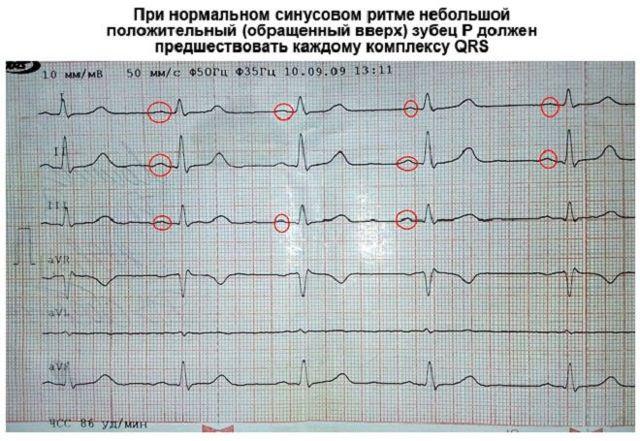 ЭКГ сердца: что это такое?