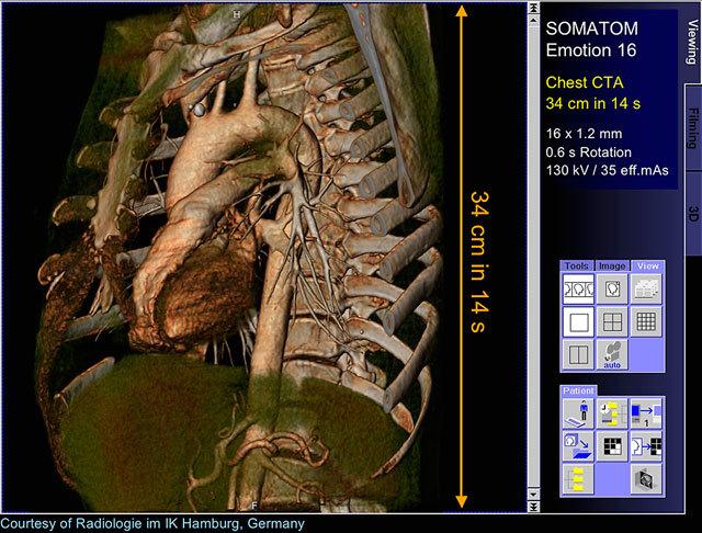 Мультиспиральная компьютерная томография - МСКТ