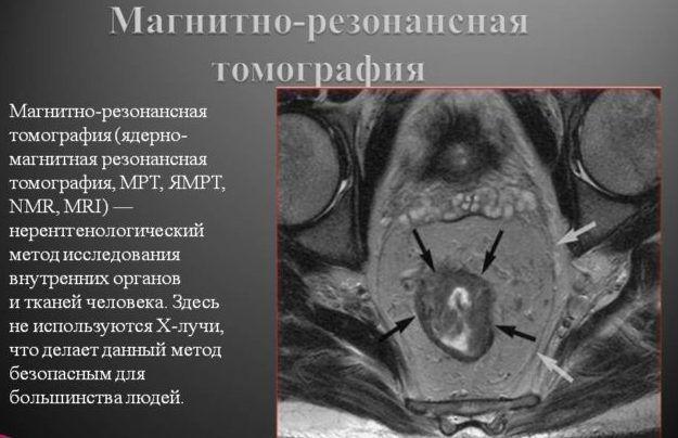 МРТ почек и мочевыводящих путей