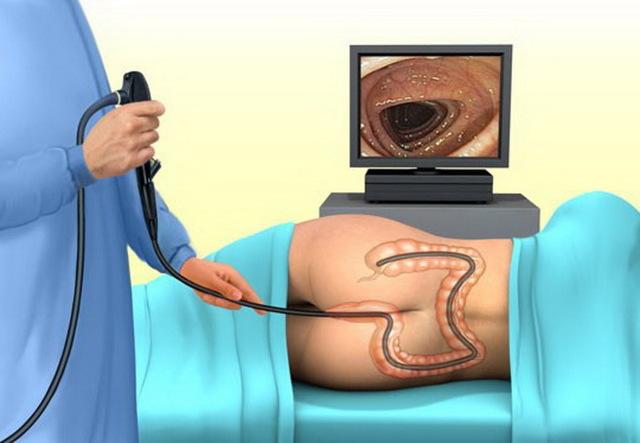 Диагностика заболеваний кишечника при помощи МРТ