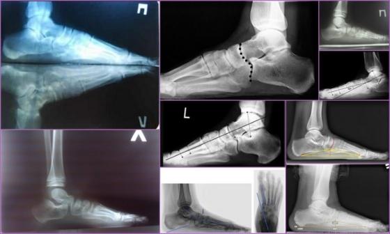 Рентген ноги и пальцев ступни: как делают?