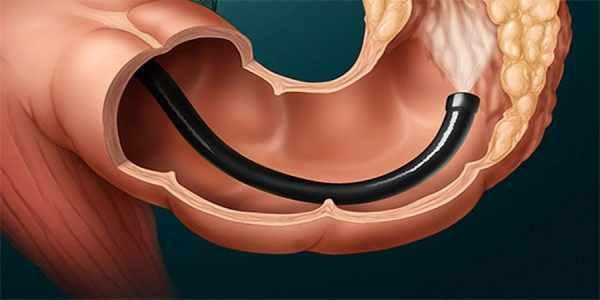 Что показывает колоноскопия – результаты обследования кишечника