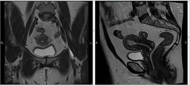 Что показывает КТ органов малого таза?