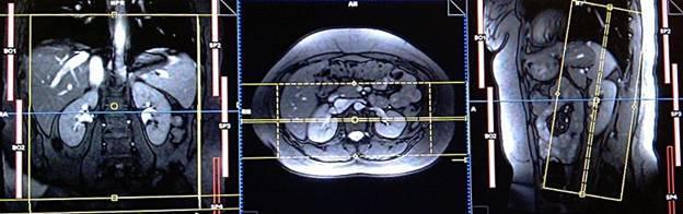 МРТ надпочечников: показания, подготовка проведение