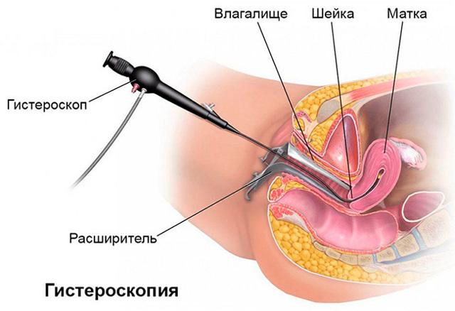 Гистероскопия – удаление полипа матки, послеоперационный период