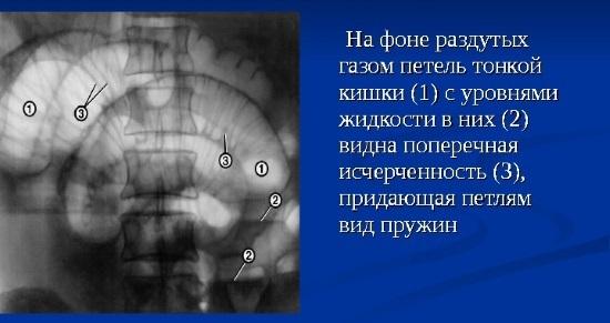 Рентген внутренних органов
