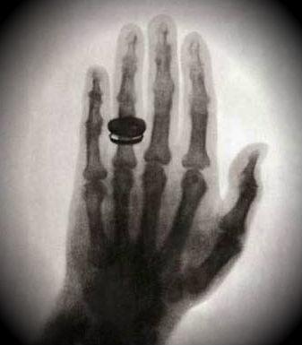 Открытие рентгена: история изобретения рентгеновского излучения