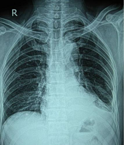 Показания и противопоказания к рентгену (рентгенографии)