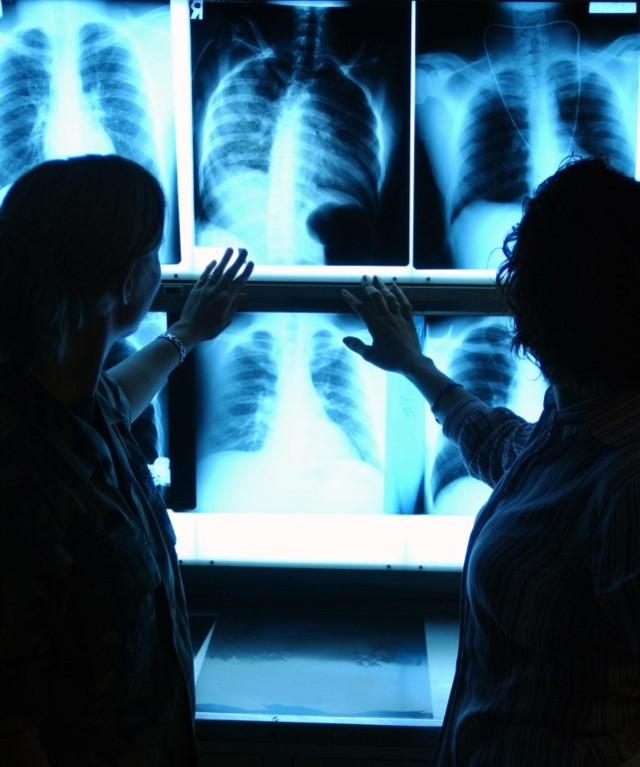 Рентген новорожденному ребенку: показания, методика, последствия