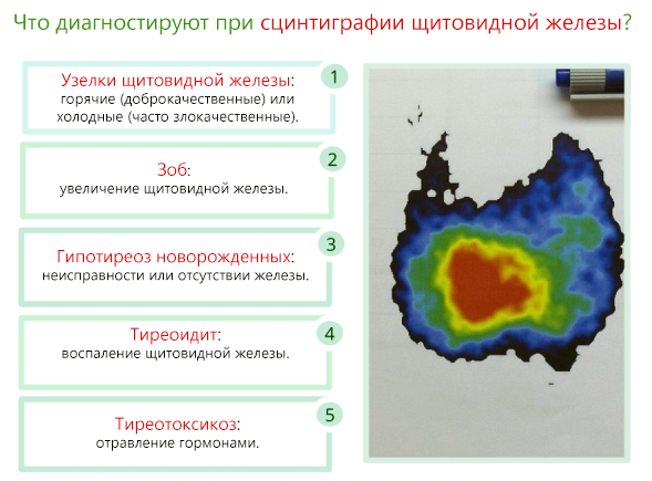 Сцинтиграфия щитовидной железы: подготовка, проведение, побочные эффекты