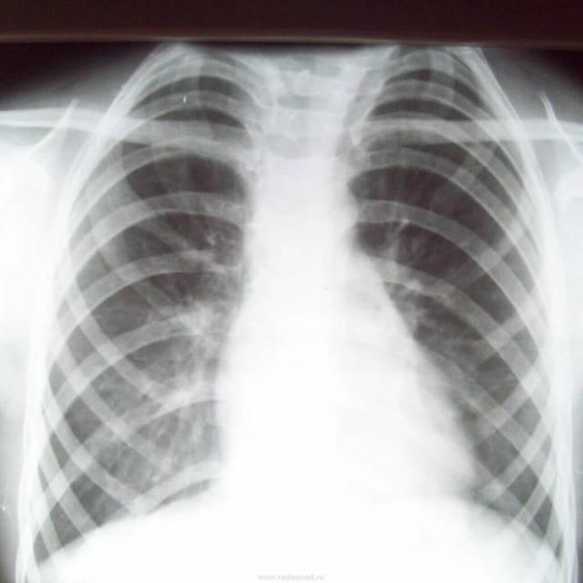 Рентген ребер: показания, подготовка, проведение, результаты