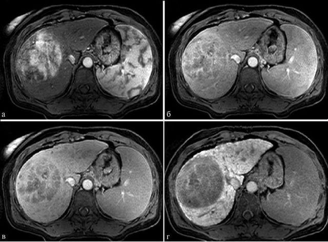 МРТ в онкологии: может ли обследование показать рак?
