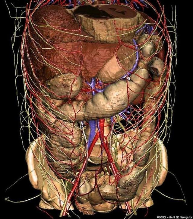 Что лучше КТ или МРТ брюшной полости, рекомендации