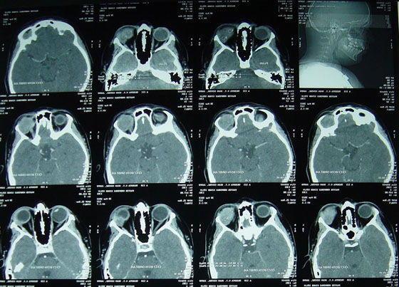 Кт (компьютерная томография) глаза и орбиты