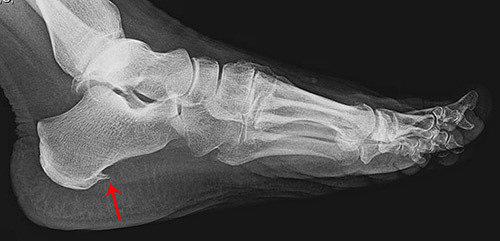 Рентген пятки (пяточной кости): шпора, описание, лечение