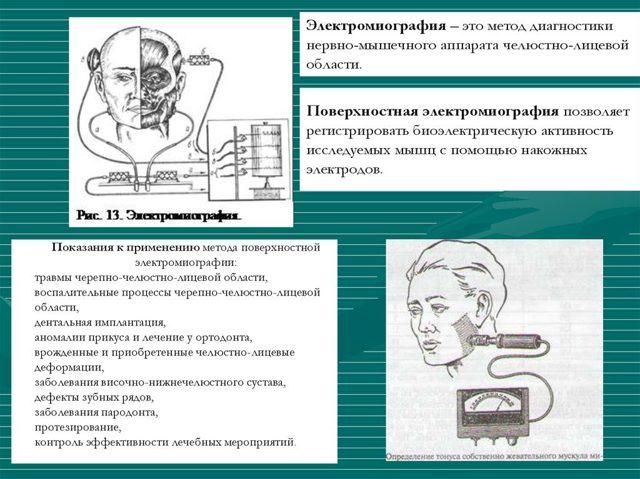 Электронейромиография (ЭНМГ) – что это такое?