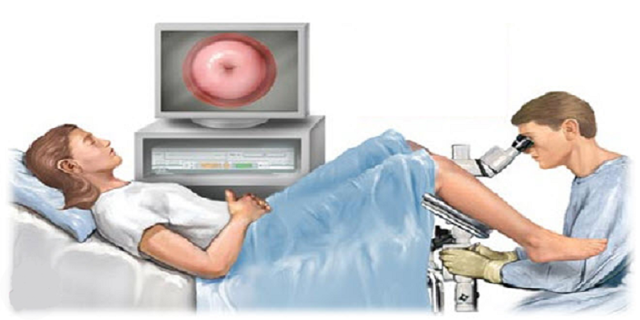Кольпоскопия при беременности: можно ли делать, на каких сроках?