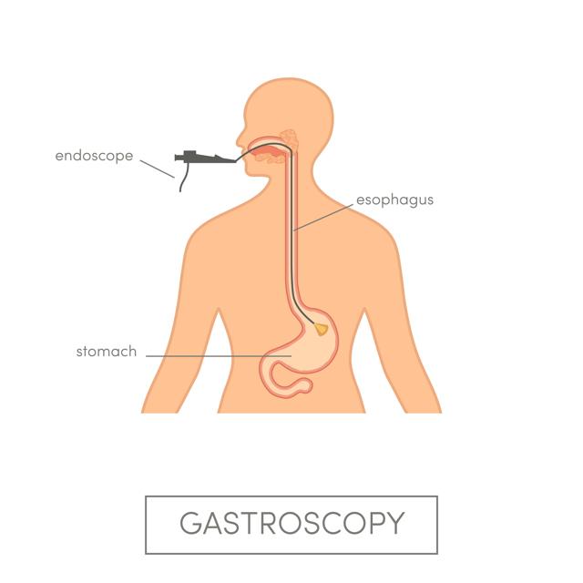 Гастроскопия – что это такое за процедура?