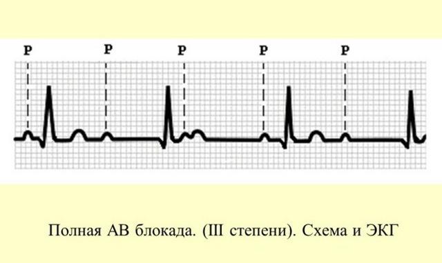 Блокада на кардиограмме: что это?