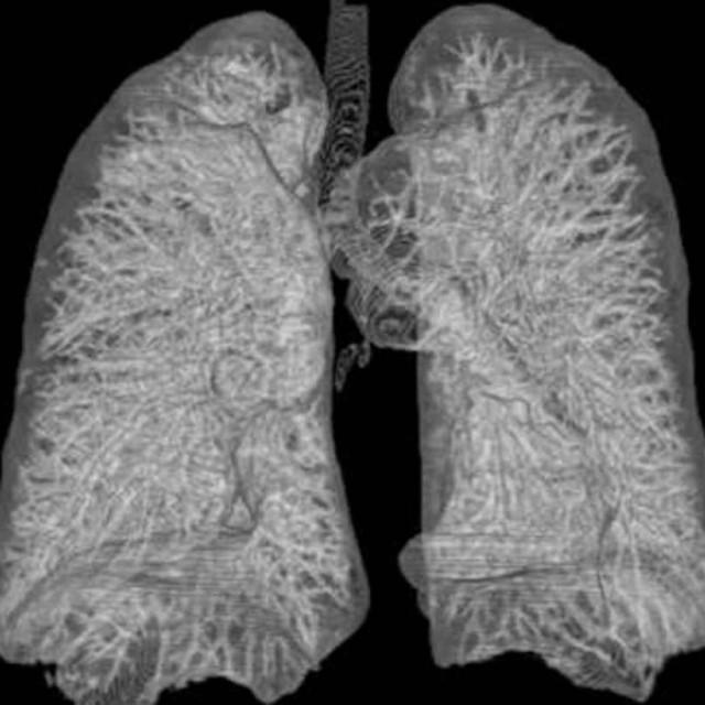 МРТ легких и бронхов: что показывает?