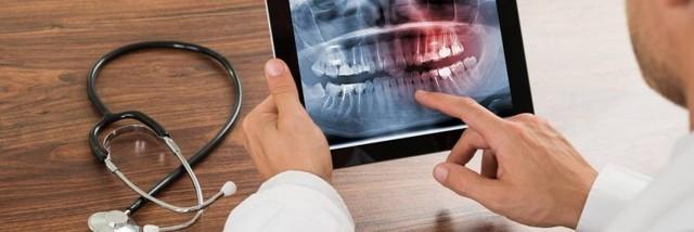 Панорамная рентгенография челюсти (зубов): показания, проведение, результаты